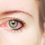 Gejala Pertanda Terkena Glaukoma
