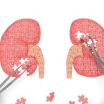 7 Penyebab Gagal Ginjal, Ketahui Gejala dan Cara Mencegahnya